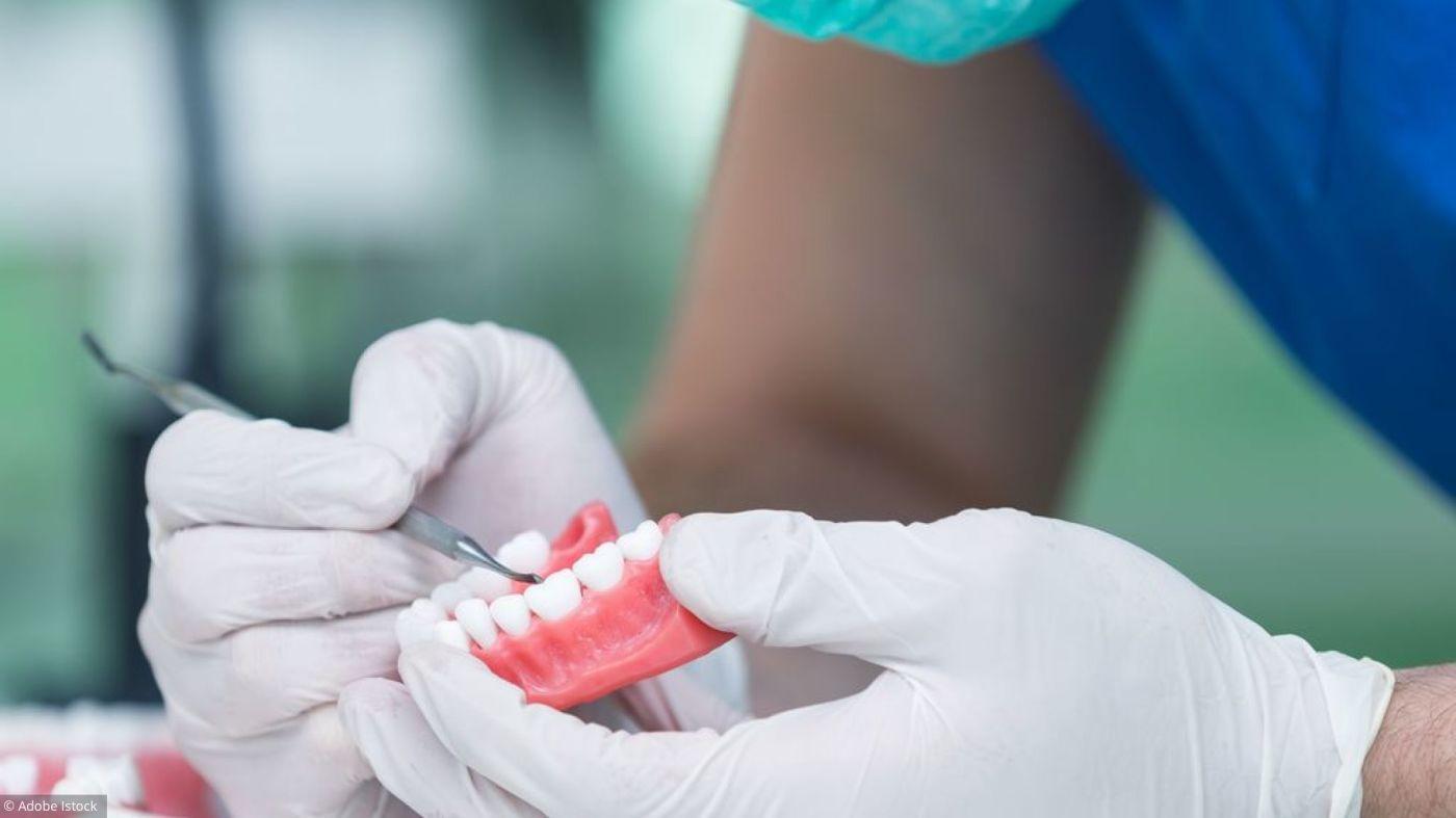 Implant dentaire : pourquoi ont-ils un tel succès ?